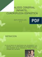 Paralisis Cerefral Infantil