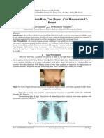 Breast Tuberculosis Rare Case Report, Can Masquerade Ca Breast