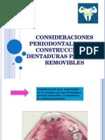 CONSIDERACIONES PERIODONTALES EN LA CONSTRUCCION DE DENTADURAS PARCIALES REMOVIBLES
