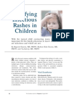 Identifying Infectious Rashes in Children
