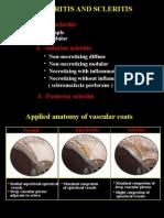 21Episcleritis & Scleritis.ppt