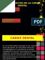 Presentacion Caso Clinico
