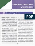 [37] Dermatitis Herpertiforme (a Partir de Aqui Enfermedades Ampollares y Vesiculares