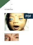 Glaucoma 2014 - San Pedro
