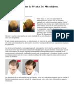5 Datos Basicos Sobre La Tecnica Del Microinjerto