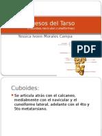 Huesos Del Tarso