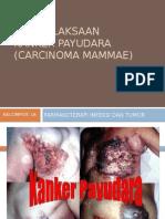 PENATALAKSAAN+kanker+payudara