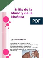 presentacion-artritis-seminario