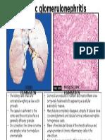 CHR. Glomerulonephritis