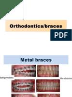 Orthodontics PPt