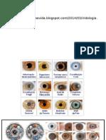 presentacion de signos iridologicos con fotografias