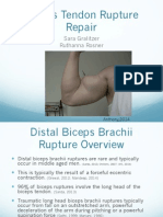 biceps brachii rupture final