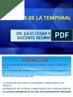 ARTERITIS DE LA TEMPORAL.ppt
