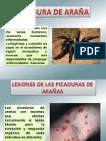 PICADURA DE ARAÑAS.ppt