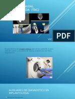 Tomografía Axial Computalizada (TAC)