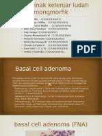 Basal Cell Adenoma