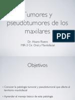 420 2014-02-25 Tumores Maxilares