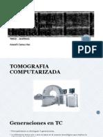 Tomografía Espiralada Multicorte