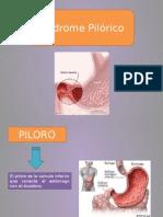 Sindrome Pilorico
