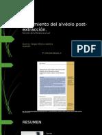 Tratamiento del alvéolo post-extracción EXPO CIRUGIA 2.pptx