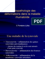 2 - Physiopathologie Des Deformations Rhumatoides
