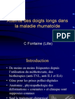 8 - Doigts Longs-rhumatoides