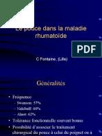 9 - Pouce Rhumatoide