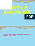 Cleft Lip and Palate presentation