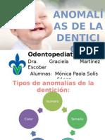 Anomalias de La Denticion