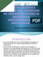 Enfermedades Infecciosas Sida