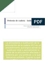 Prótesis de Cadera - Indicaciones