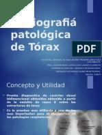 Neumologia - Radiografiá patológica de Tórax.pptx
