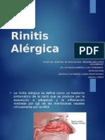 Alergologia - Rinitis Alérgica