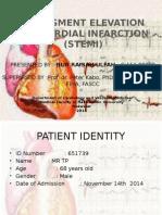 St Sement Elevation Myocardial Infarction (Stemi) New