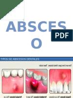 absceso, celulitis