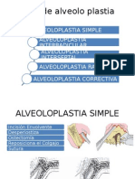Tipos de Alveolo Plastia