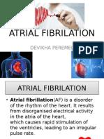 Atrial Fibrilation... Tutorial