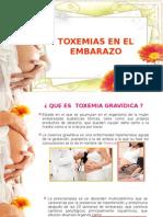 Toxemias de La Gestación