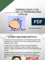 Edema Generalizado
