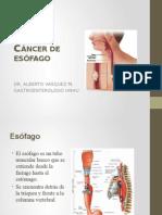 cancer esofagico