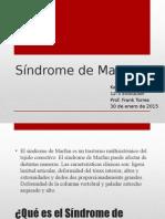 Síndrome de Marfan Presentacion