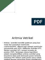 aritmia ventrikel ppt