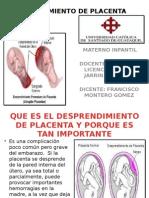 Desprendimiento de Placenta