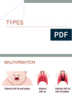 Cleft Lip and clip Palate