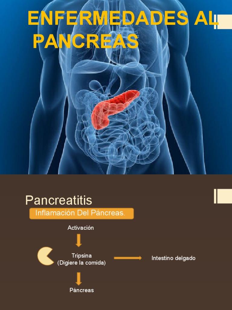 Enfermedades Al Pancreas