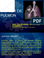 Cancer de Pulmon Angel