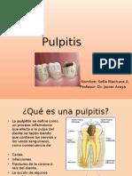 Pulpitis