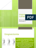 Gingivectomia y Gingivoplástia