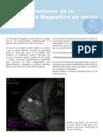 Siete indicaciones de la Resonancia Magnética en mama