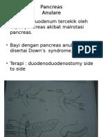Anulare Pancreas